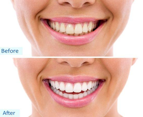 Before & After - LA Dental Experts